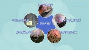 深度剖析:如何防控母猪子宫炎?提高母猪利用年限