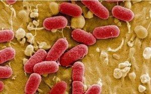 产房防控大肠杆菌病的十大风险因素